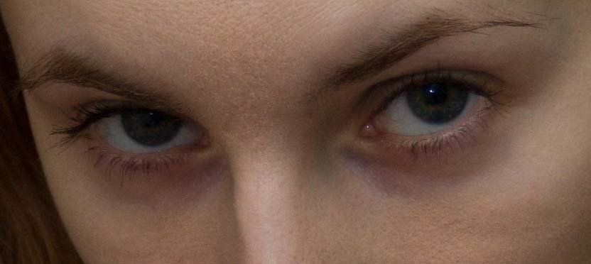 Как убрать фиолетовые синяки под глазами